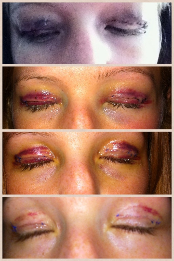 starting with the top: immediately after surgery, day after surgery, 7 days after surgery, 12 days after surgery