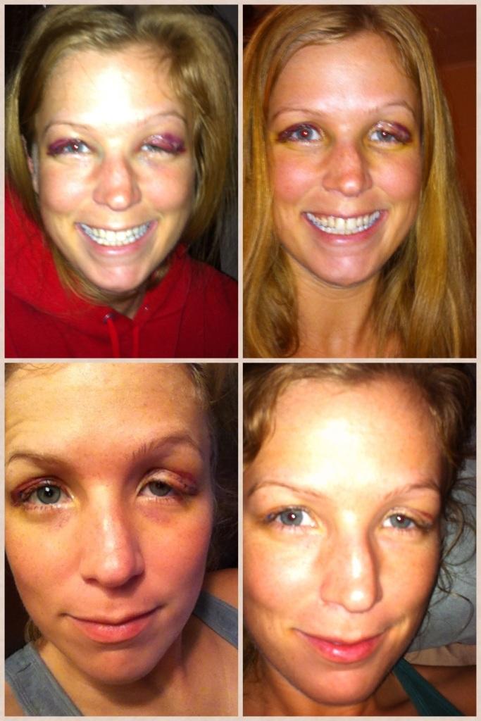 2 days after surgery, 7 days after surgery, 9 days after surgery, 12 days after surgery.